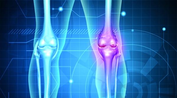 2015_osteoarthritis